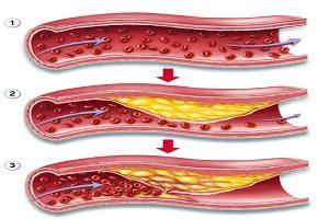 Biến chứng mạch máu lớn do đái tháo đường