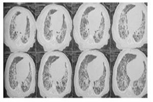 Bệnh phổi kẽ nặng ở trẻ sơ sinh