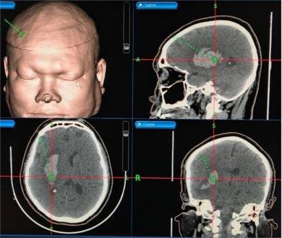 Hình 3. Nhập dữ liệu hình ảnh, lập kế hoạch phẫu thuật