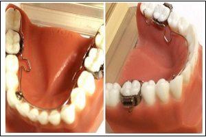 Can thiệp sớm sai khớp cắn hạng II và lệch hàm do cắn kéo răng cối lớn 1 bên