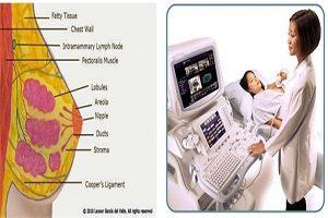 Vai trò của siêu âm trong chẩn đoán các bệnh lý tuyến vú