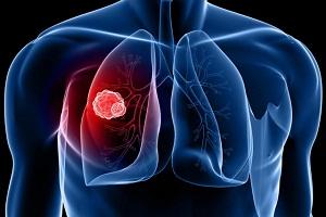 Chẩn đoán và điều trị ung thư phổi qua nội soi phế quản
