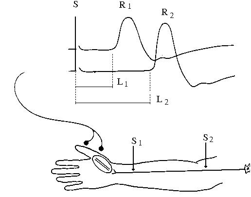 Hình 1: Đo dẫn truyền thần kinh vận động dây thần kinh giữa, ghi đáp ứng co cơ ở ô mô cái, kích thích điện vào dây giữa ở 2 điểm: S1 là kích thích điện ở cổ tay, S2 là kích thích điện ở khuỷu tay. Tương ứng trên màn hình và giấy ghi ta có đáp ứng co cơ R1 và R2. Thời gian tiềm là khoảng thời gian từ lúc có kích thích tới lúc có đáp ứng co cơ, ta có tương ứng là L1 và L2, trong đó L1 chính là DML. Hiệu số l = L2-L1 (tính bằng ms) là khoảng thời gian xung điện đi từ khuỷu (điểm S2) tới cổ tay (điểm S1).
