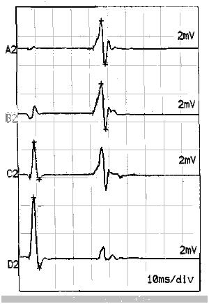 Hình 3: Phản xạ H tại cơ dép, với kích thích cường độ thấp, ta thấy đáp ứng co cơ trực tiếp (sóng đi trước) có biên độ rất thấp và phản xạ H có biên độ cao hơn. Từ trên xuống dưới: với cường độ kích thích tăng dần thì phản xạ H cũng tăng biên độ, nhưng khi kích thích với cường độ trên tối đa thì mất phản xạ H và sóng F xuất hiện. (Tư liệu của tác giả).