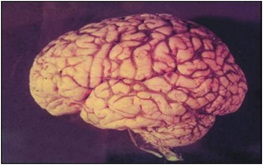 Mặt ngoài vỏ não
