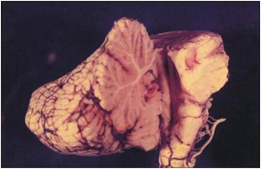 Vùng góc cầu tiểu não
