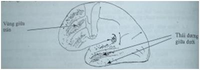 Hình 6. Ổ teo não ở mặt ngoài
