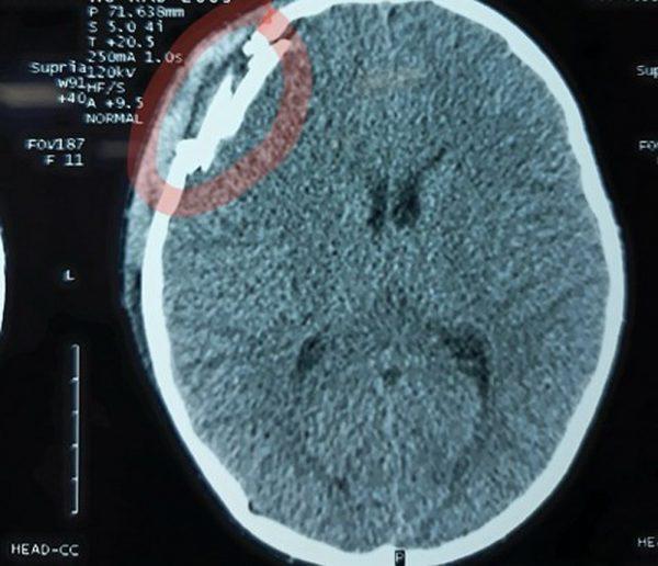 Hướng dẫn đọc phim cắt lớp vi tính sọ não