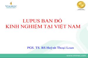 Lupus đỏ ở trẻ em Việt nam: kinh nghiệm tại một bệnh viện Nhi miền Nam