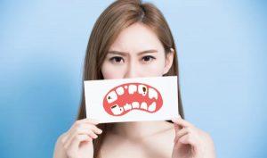 Bệnh răng miệng (ảnh minh họa)