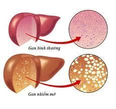 Bệnh gan nhiễm mỡ gây nhiều biến chứng nguy hiểm