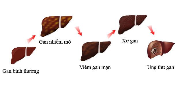 Biến chứng của bệnh gan nhiễm mỡ