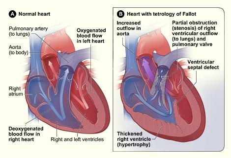 Tật tim bẩm sinh ở trẻ em