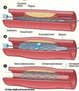 Điều trị tim mạch bằng cách đặt stent mạch vành