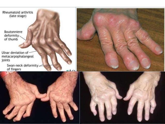 Triệu chứng viêm khớp dạng thấp