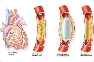 Xơ vữa động mạch - Vài nét nhận diện