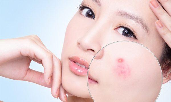 Phương pháp điều trị mụn của ngành da liễu