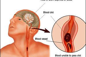 Dấu hiệu nhận biết và xử lý đột quỵ não