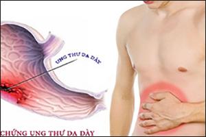 Những điều cần biết về Ung thư dạ dày
