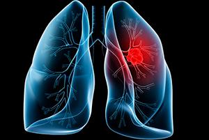 Cách nhận biết ung thư phổi