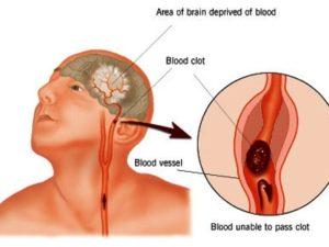 Dấu hiệu của đột quỵ não. (Ảnh: Internet)