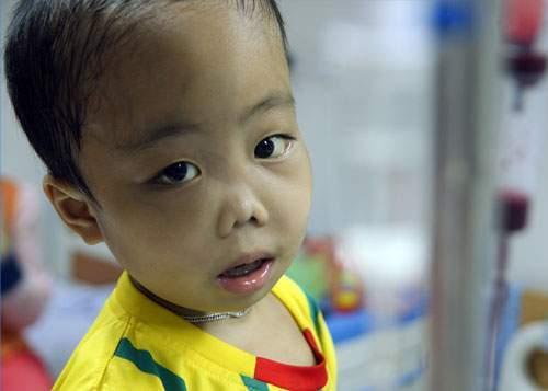 Trẻ bị thiếu máu thalassemia