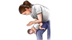 Xử trí khi trẻ bị hóc dị vật