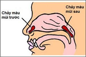 Phân loại chảy máu mũi