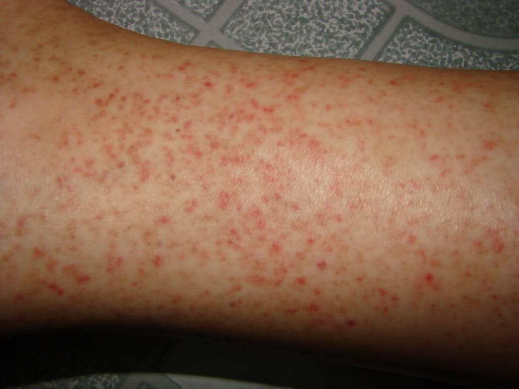 Xuất huyết dưới da dấu hiệunhận biết sớm sốt xuất huyết Dengue