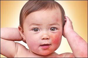 Tẩy chàm cho trẻ khi nào?