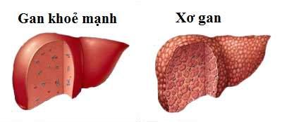 Xơ gan - biến chứng của viêm gan B