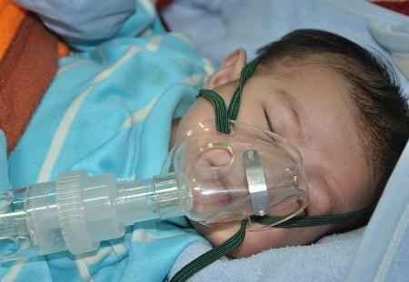 Thở oxy để tránh suy hô hấp