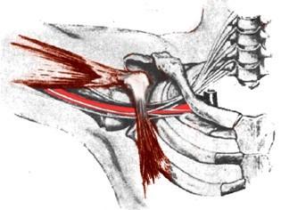 Động mạch nách và đám rối thần kinh cánh tay bị chèn ép giữa xương đòn và xương sườn 1, khi ở tư thế tay dạng 90 và xoay ra ngoài.