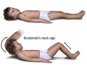 Dấu hiệu Brudzinski trong hội chứng màng não