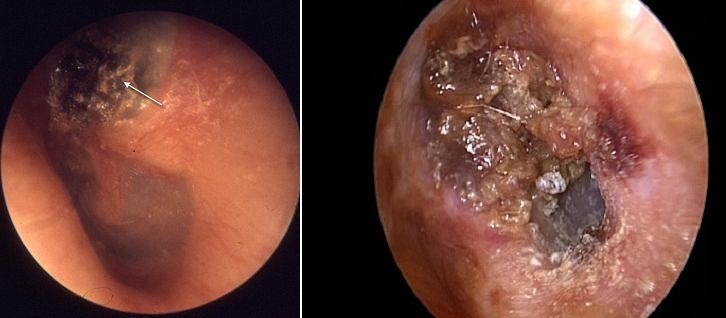 Khối cholesteatoma ăn mòn, phá hủy các thành phần của tai giữa