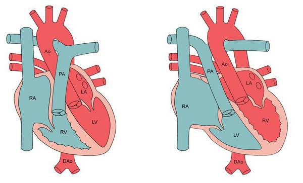 TIẾP SỨC NGƯỜI BỆNH Cứu sống kịp thời trẻ sơ sinh bị chuyển vị đại động mạch