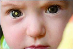 Đồng tử trắng ở trẻ em