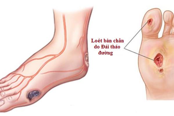 Biến chứng loét bàn chân của bệnh đái tháo đường