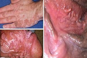 Nhiễm HPV - Lâm sàng và các xét nghiệm chẩn đoán