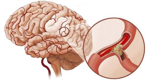 Tai biến mạch máu não đứng hàng đầu về khả năng gây tàn tật