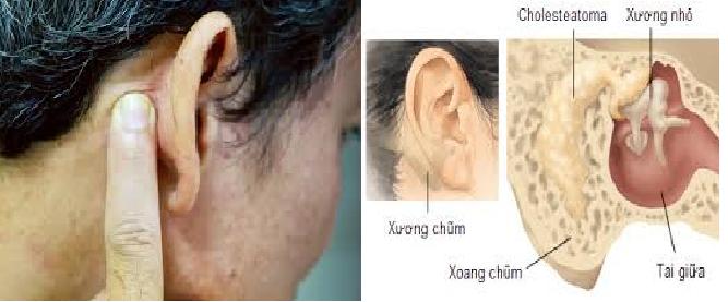 Viêm tai xương chũm hồi viêm