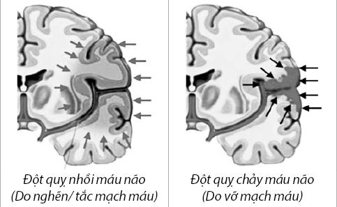 2 thể đột quỵ não