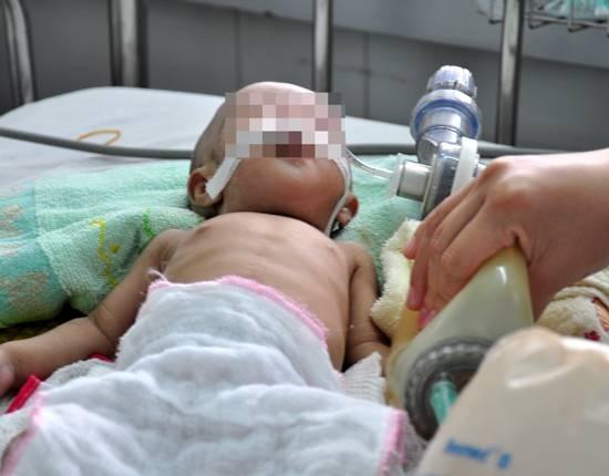 Trẻ bị sốc do tiêu chảy cấp nguy cơ tử vong cao