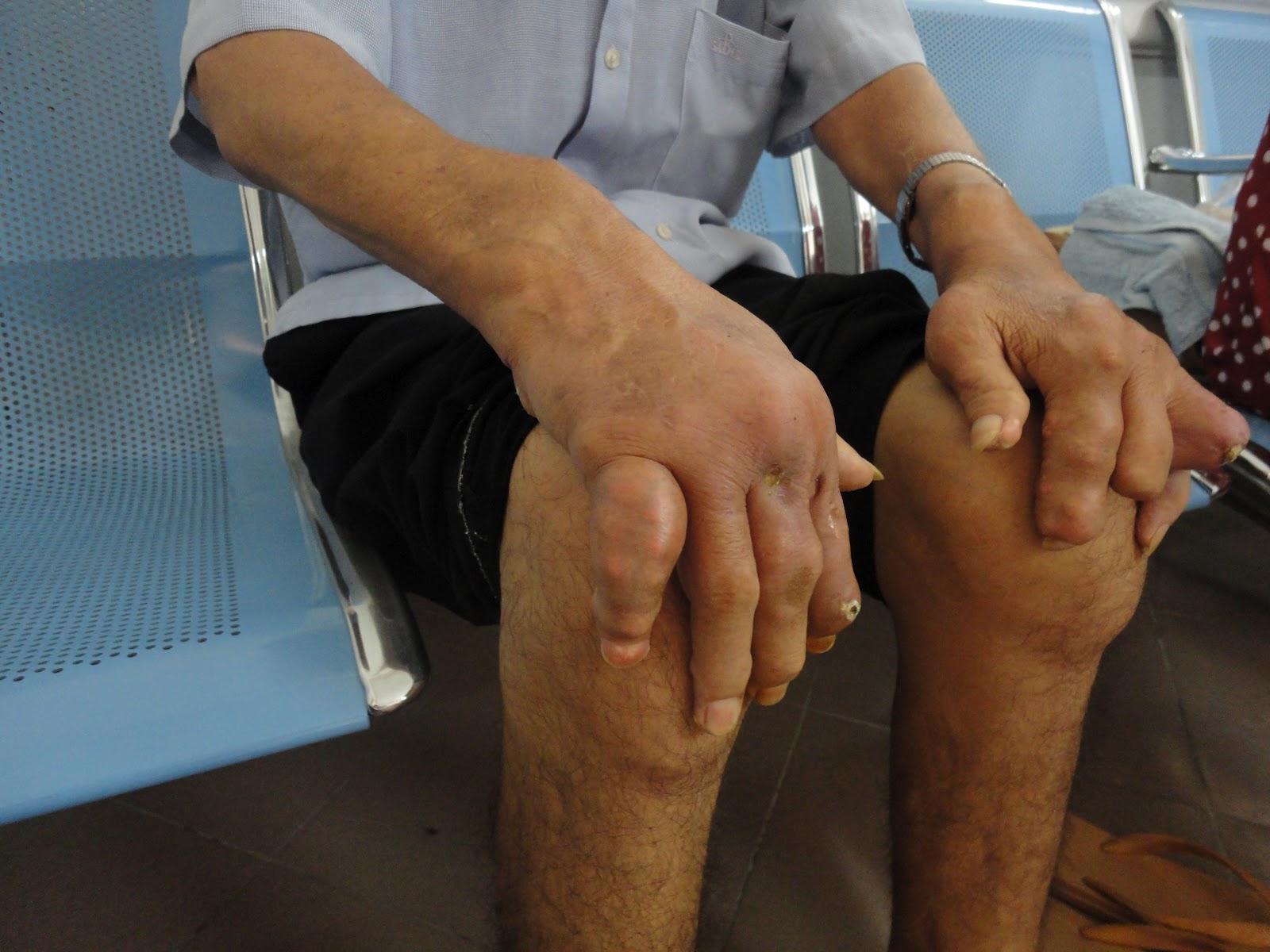 Biến dạng khớp trong bệnh gout