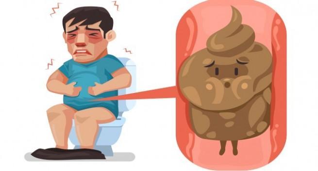 Nguyên nhân bệnh trĩ