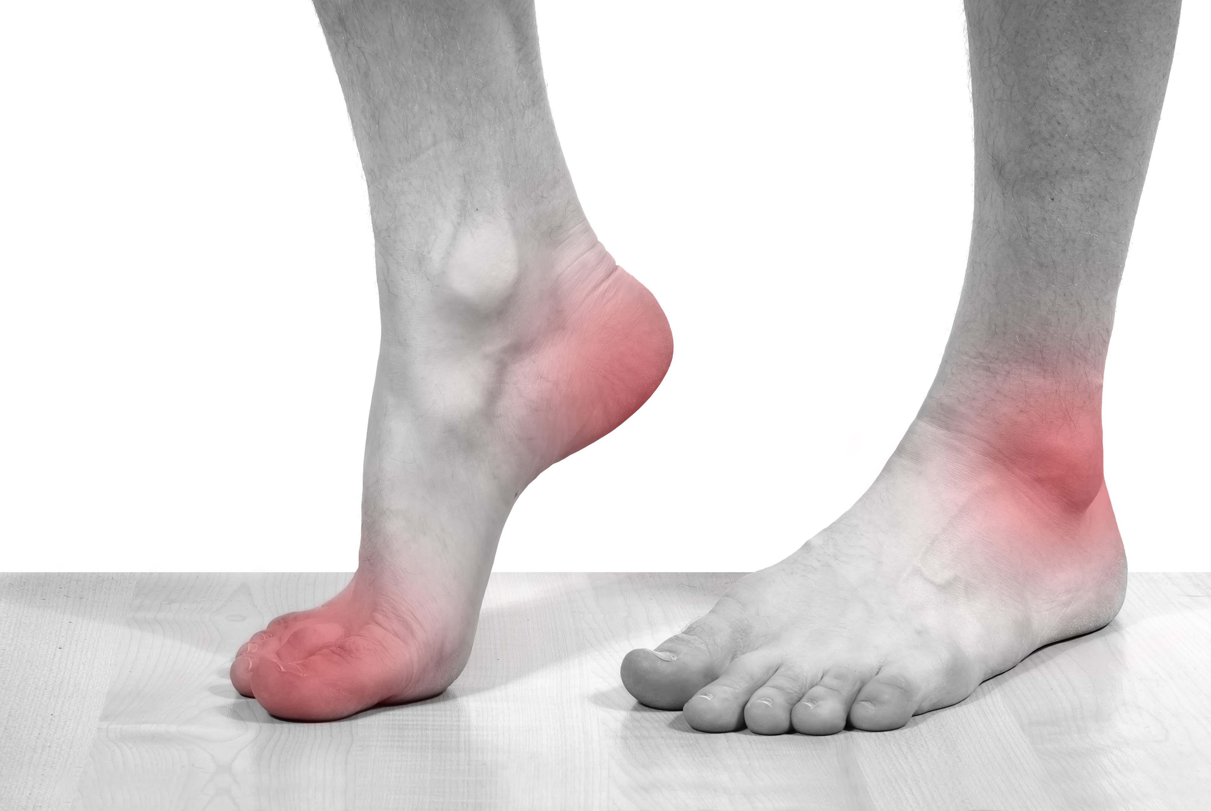Nguyên tắc điều trị Gout