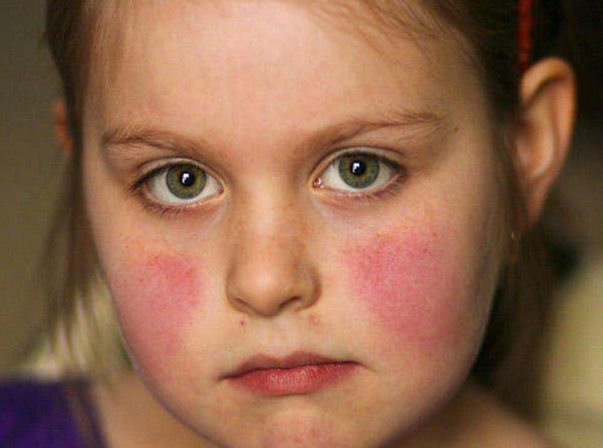 Người bệnh lupus rất nhạy cảm với ánh sáng