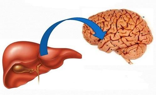 Hội chứng não gan là một trong các biến chứng nguy hiểm của viêm gan B