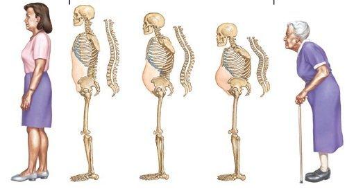 Biến chứng của loãng xương
