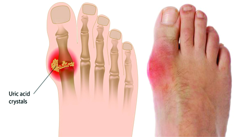 Sưng đau đỏ khớp bàn ngón chân cái là dấu hiệu của gout đặc trưng